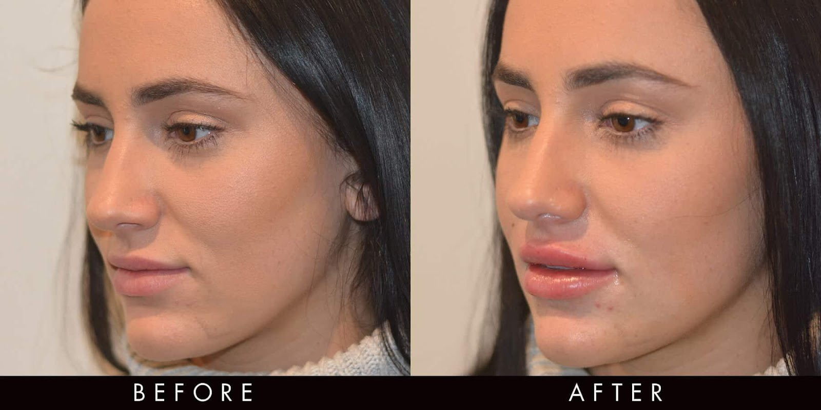 What's the Best Dermal Filler for Nonsurgical Jawline