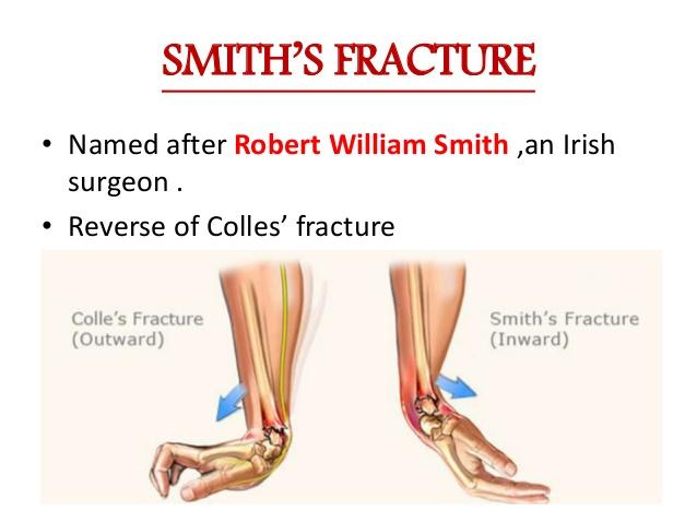 SMITH'S FRACTURE • Named after Robert William Smith ,an Irish surgeon . • Reverse of Colles' fracture