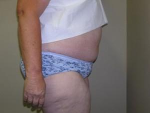 after liposuction surgery in new jersey