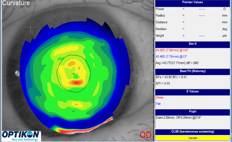 Ocular surface dry eye treatment