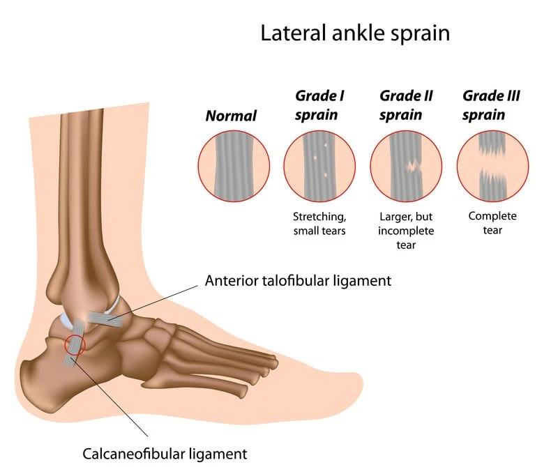 Ankle Sprain Rehab