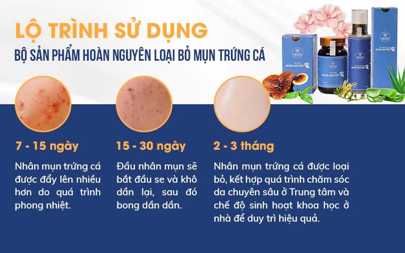 Mẹo trị mụn trứng cá tại nhà bằng phương pháp thiên nhiên