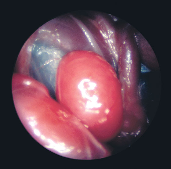 Enlarged spleen of a bird with psittacosis