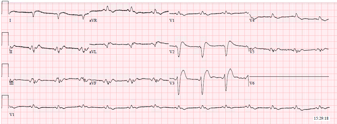Hyperkalemia with normalized morphology after calcium