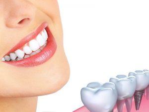 Trồng răng Implant mất bao lâu thì ổn định? - Nha khoa Bally