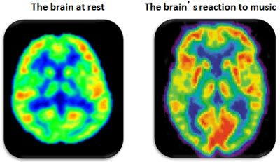 Image result for brain scan on music