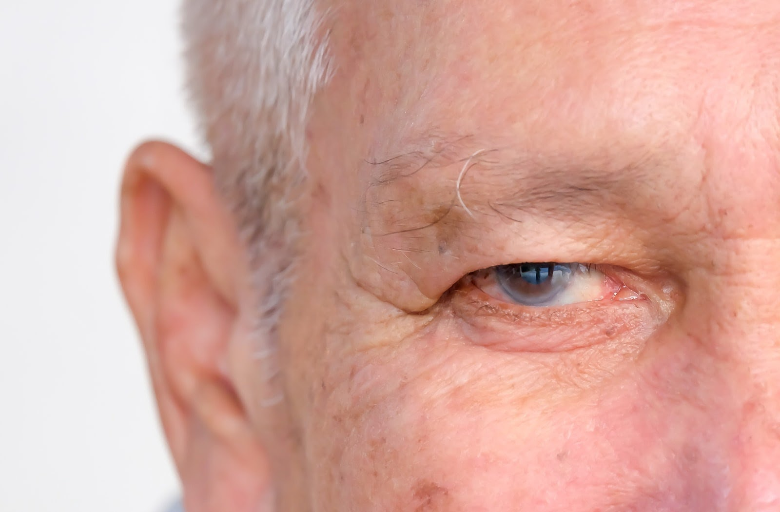 Close up of older men with glaucoma in his eye