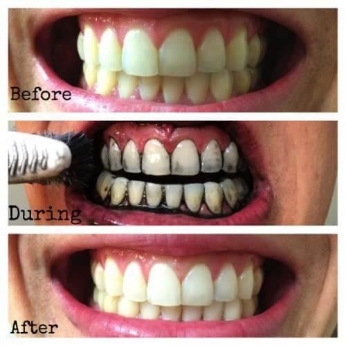 Cách làm trắng răng bằng lá ổi có hiệu quả không? 1