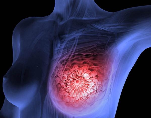Ung thư vú -tế bào tuyến vú tăng sinh mất kiểm soát