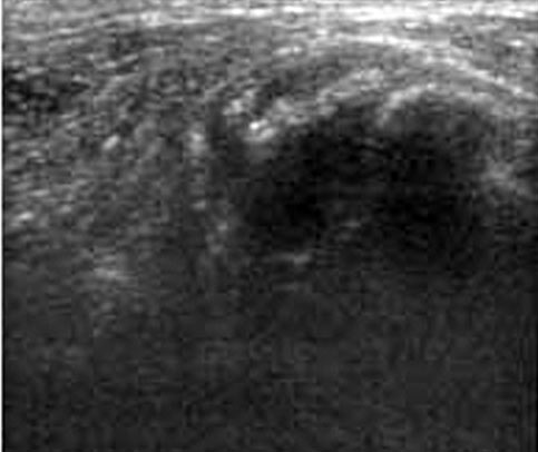 Ultrasonographic image showing a transverse view of a biceps tendon with disruption of normal tendon architecture and associated effusion