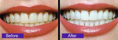 Làm trắng răng ở đâu tốt - Chia sẻ từ người có kinh nghiệm? 1