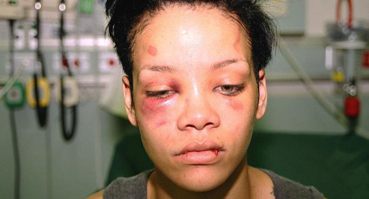 Rihanna bruised face