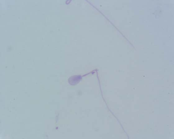 Bent sperm tail. Smear of a sperm rich fraction, air dried and stained with Diff-Quick.