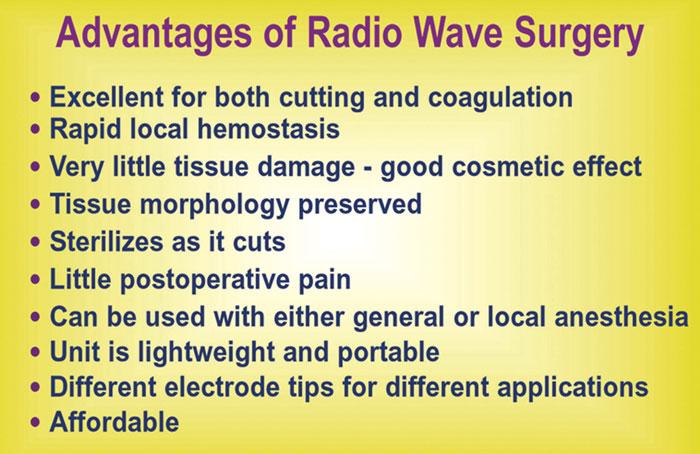 Advantages of radio wave surgery