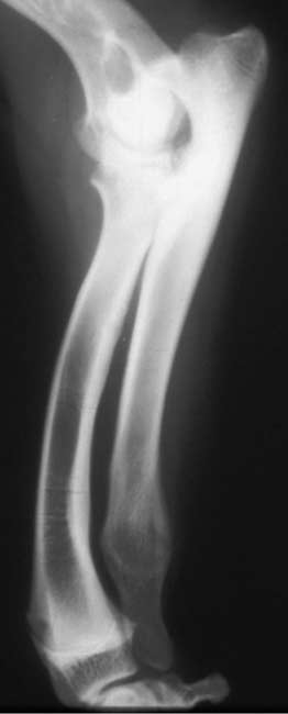 Radiograph showing premature closure of the distal ulnar physis causing antebrachial shortening, substantial curvature and humeroulnar subluxation