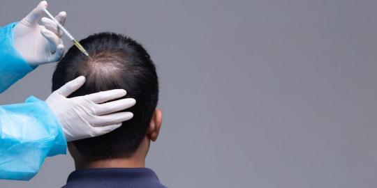 PRP into the scalp
