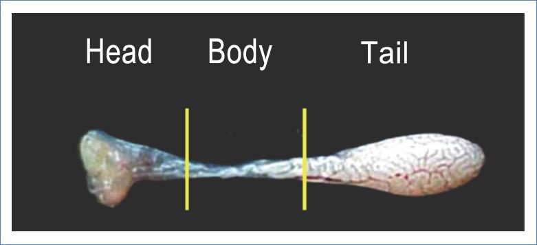 The epididymis main regions: head, body and tail.
