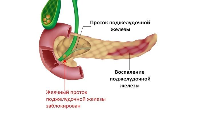 Что такое рак поджелудочной железы