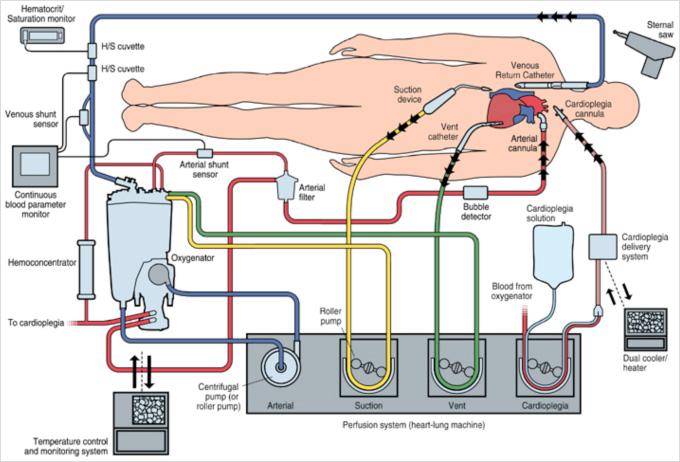 人工心肺回路図