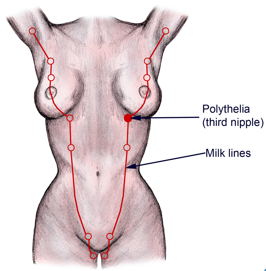 Diagram of a nude body pointing at a third nipple, known as polythelia.