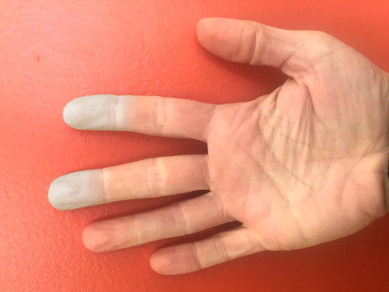 Hand showing symptoms of Raynauds