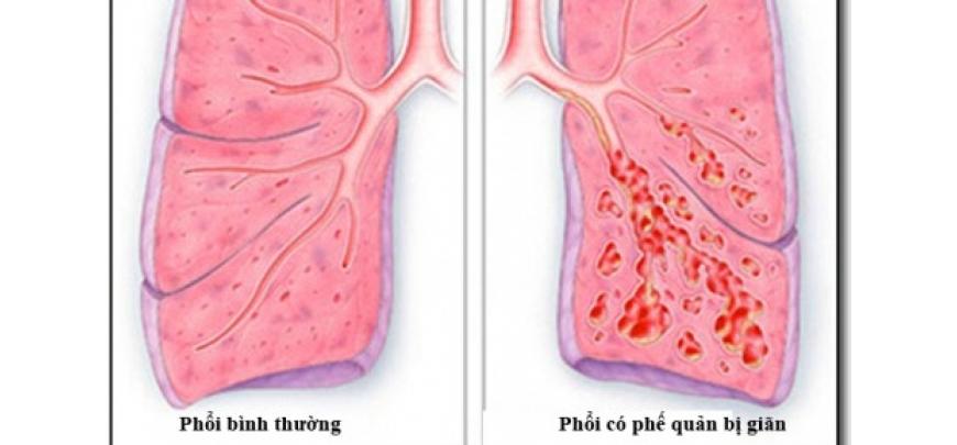 Giãn phế quản có thể khiến người bệnh bị ho ra máu