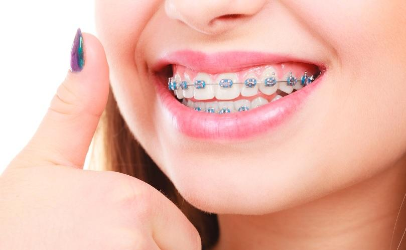 C:\Users\stefa\Downloads\PICTURES\orthodontics-canberra.jpg