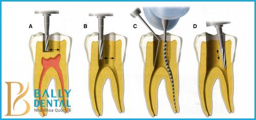 Đừng chủ quan với bệnh viêm tủy răng sữa ở trẻ em