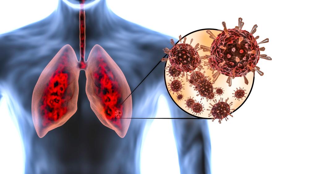 Medicamento antecipa resposta imunológica e previne lesões graves no trato respiratório. (Fonte: MarcinWojc/Shutterstock)