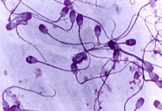 Abnormal forms of sperm morphology. Cerovsky stain.