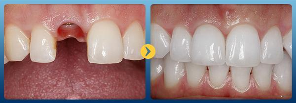 hình ảnh trước và sau khi cấy ghép imlant tại nha khoa cataria 1