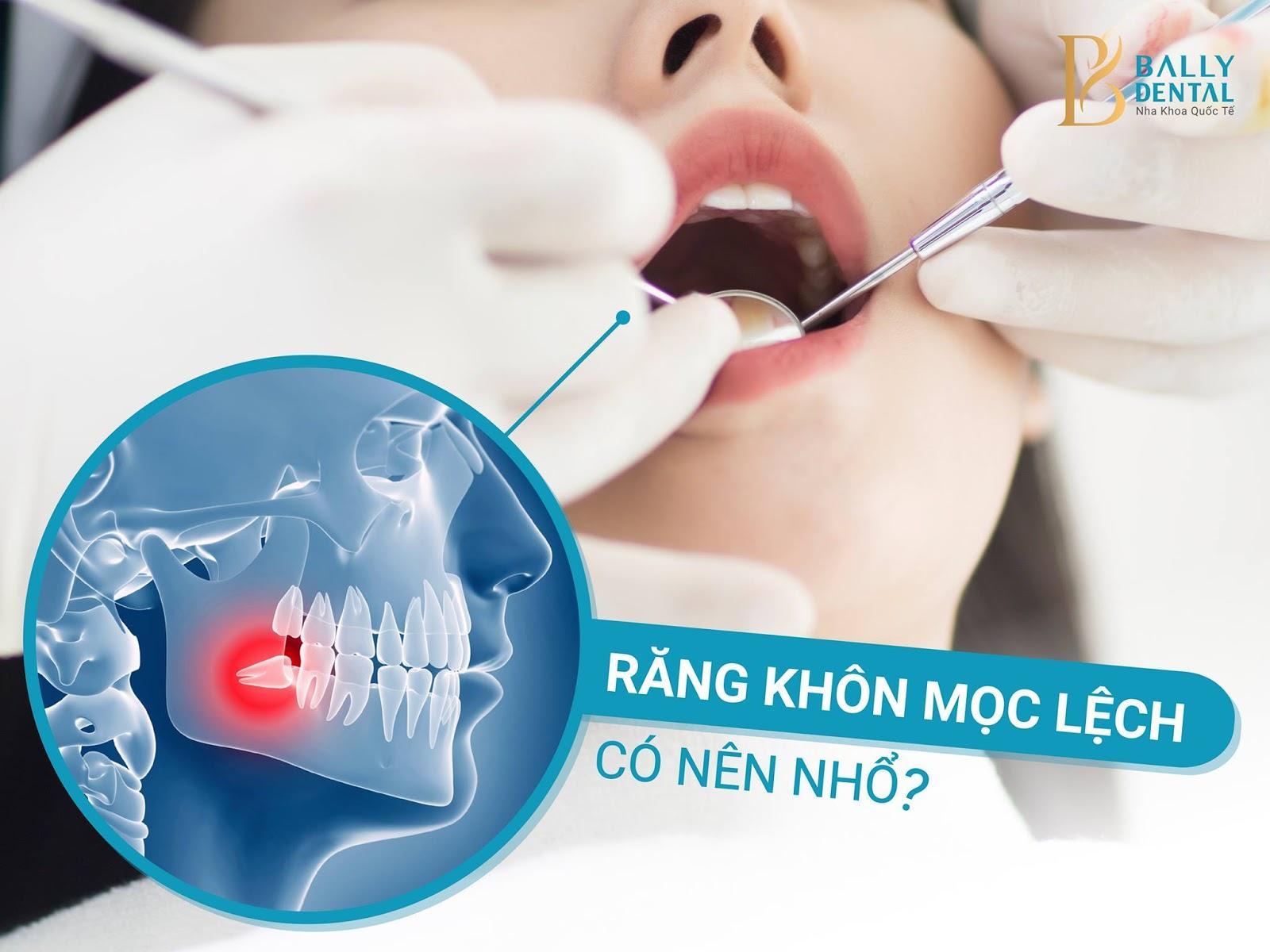 Nhổ răng khôn đau mấy ngày? Bác sĩ Nha khoa giải đáp Nha khoa Bally