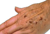 http://www.homeremediesweb.com/images/condition_age_spots.jpg