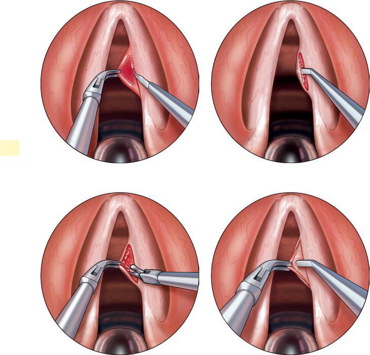 Πολύποδες Φωνητικών Χορδών Καρκίνος του Λάρυγγα - LASER  Λαρυγγιτιδα