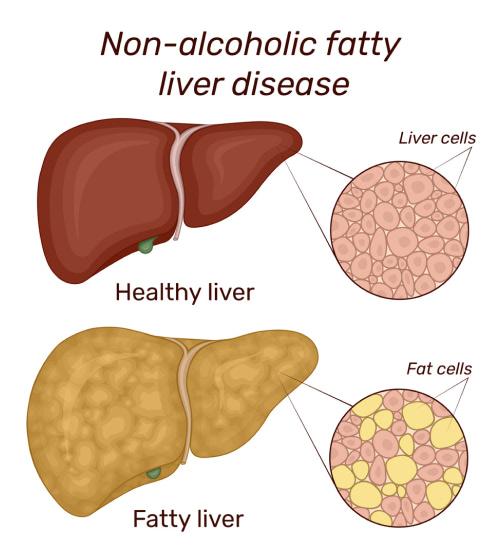 Healthy vs Fatty Liver