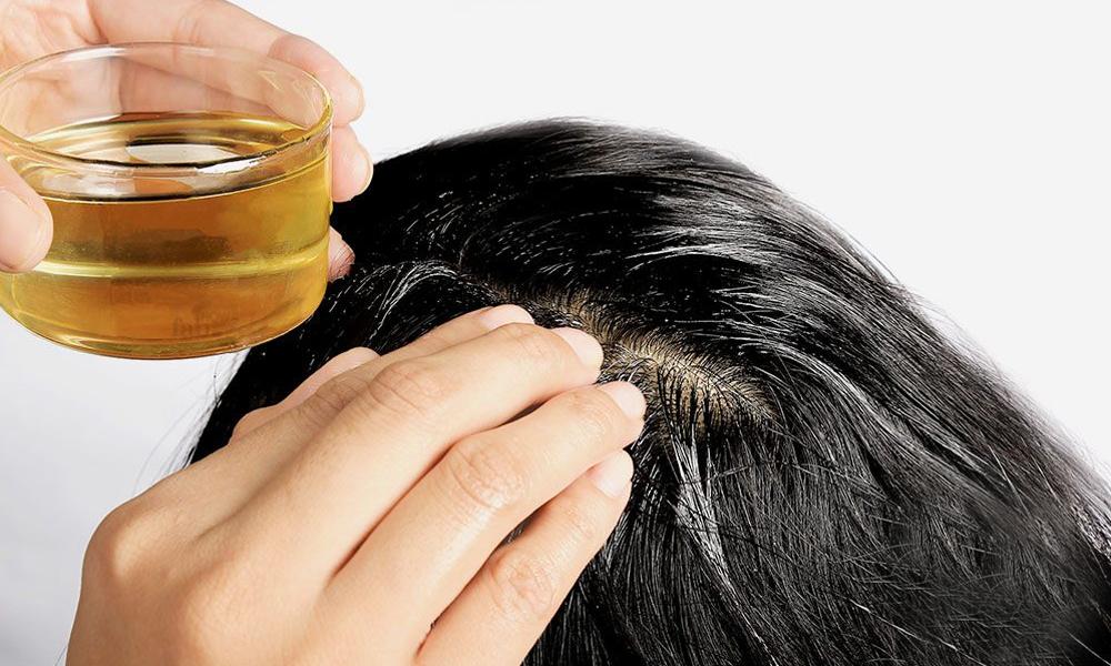 best oil for hair fall