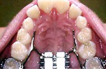 Opened mouth expansion therapy