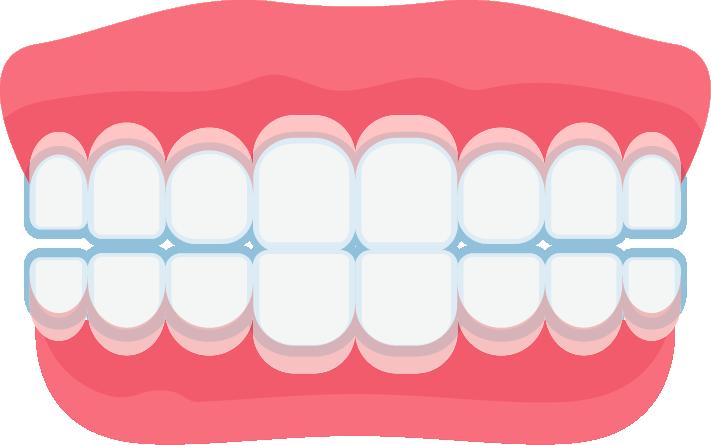C:\Users\JJ LU\Downloads\1.INVISALIGN(隱適美)隱形牙套.png