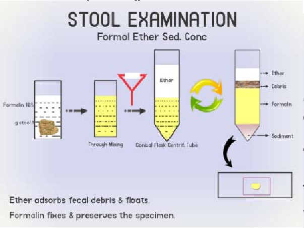 Stool sedimentation concentration technique
