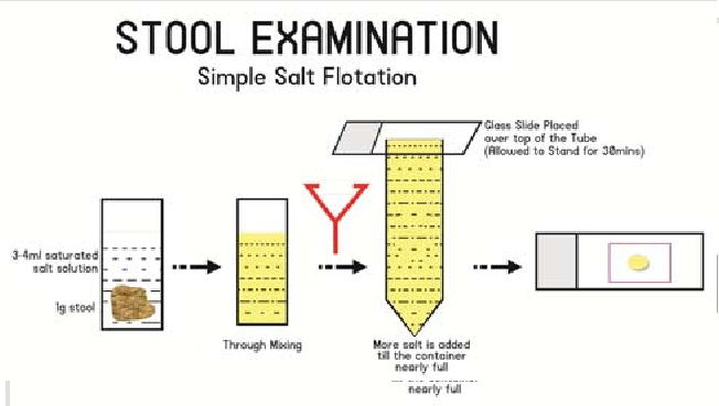 Stool flotation concentration technique