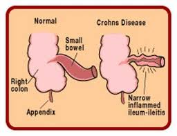 Billedresultat for crohns disease