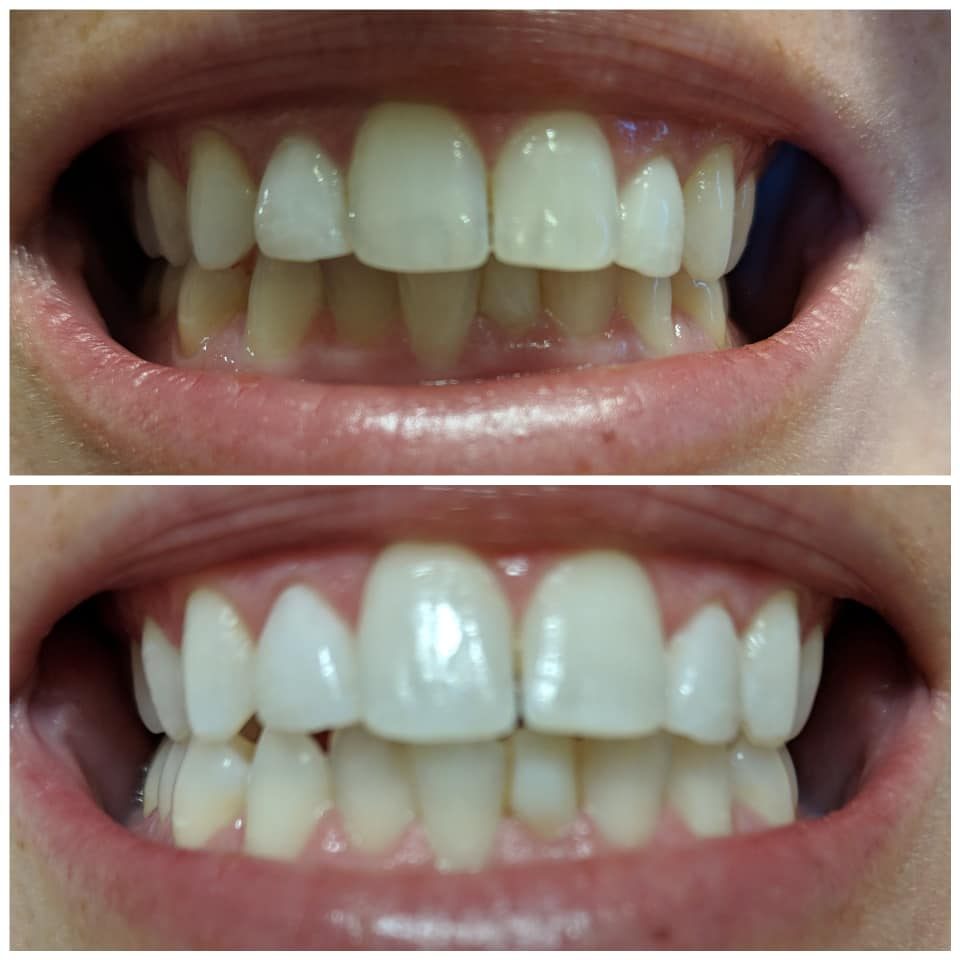 Burst Whitening Strips Review Do They Work Toothbrush Life