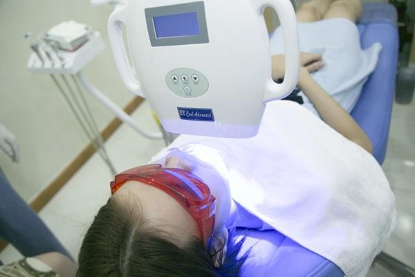 Ê buốt răng sau khi tẩy trắng nên phòng tránh như thế nào? 1