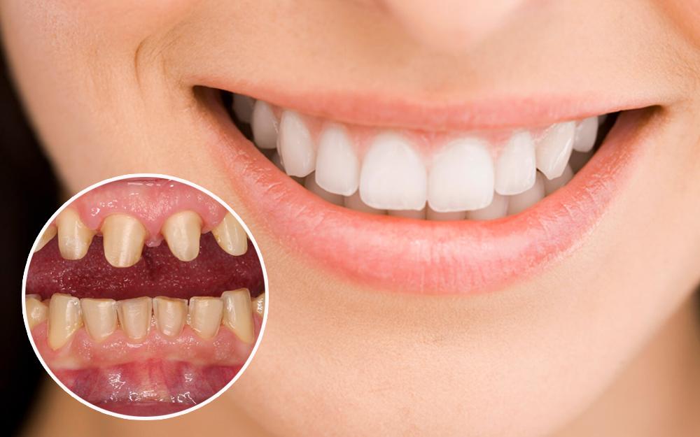 Bọc răng sứ có nguy hiểm không đến tính mạng