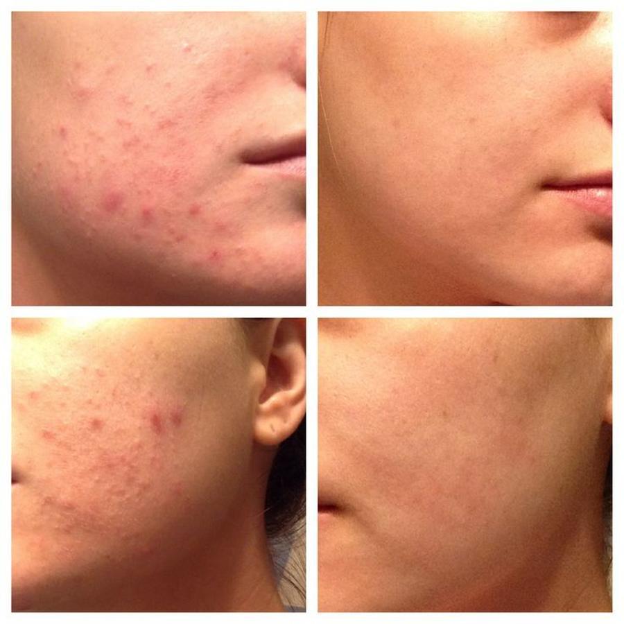 Hiệu quả của sản phẩm Murad Rapid Relief Acne Spot Treatment quả là đáng đồng tiền bát gạo