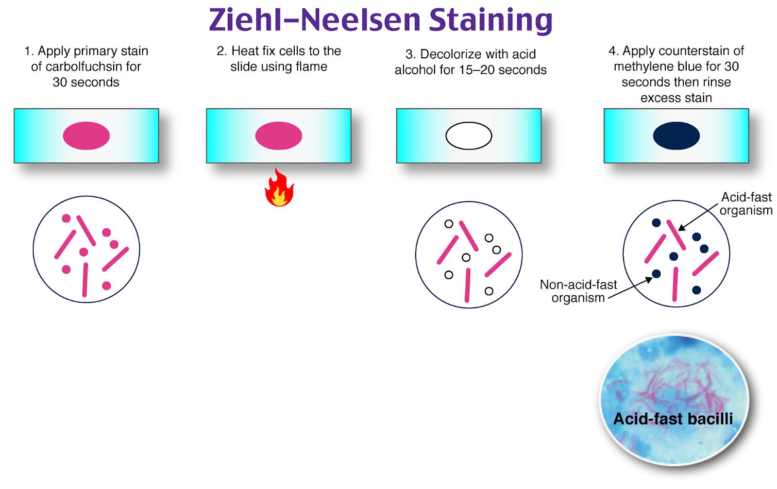 Ziehl-Neelsen Staining, Acid Fast bacteria