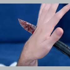 Picture of a graphic hand injury, a bloody knife is going all the way through the person's hand.