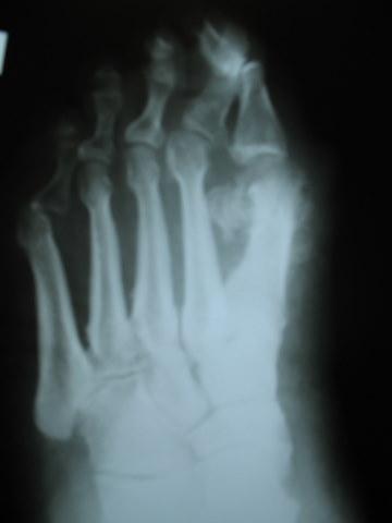 Рентгенограмма при артрозе суставов стопы