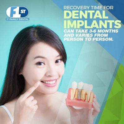 Tìm hiểu trồng răng implant 4s