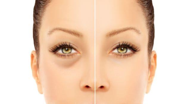 5 Natural Home Remedies to Remove Dark Circles - NDTV Food